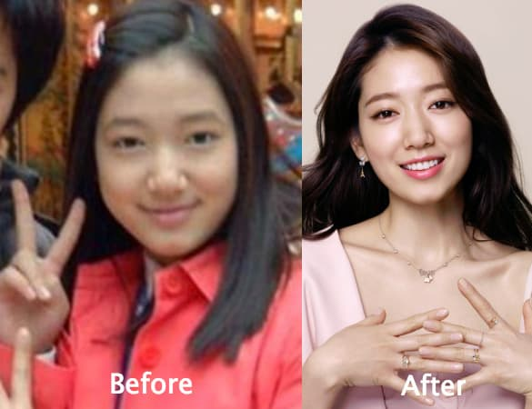Park Shin Hye Plastic Surgery Before And After 1