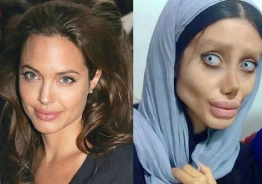 Beauty Queens Before And After Plastic Surgery 1