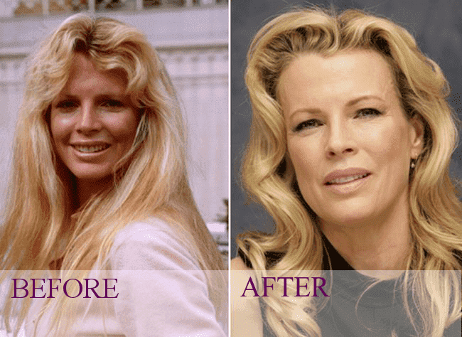 Celebrity Facial Plastic Surgery Before After 1