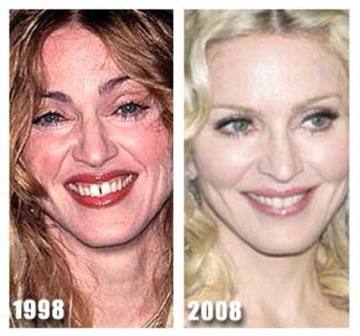 Cher Before And After Plastic Surgery Pictures 1