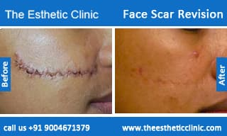 Face Plastic Surgery Before And After In India 1