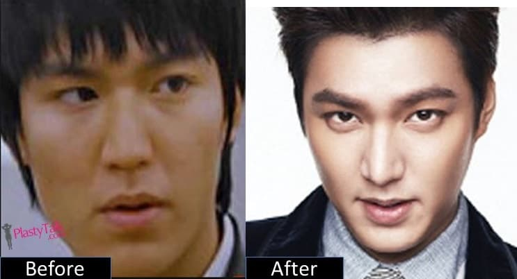 Korean Plastic Surgery Before After Lee Min Ho 1