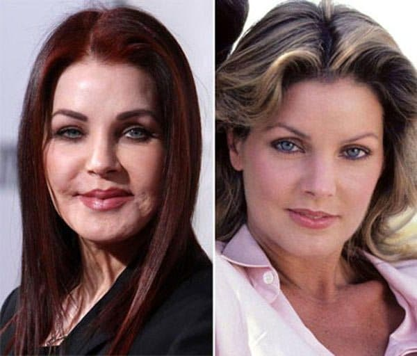 Priscilla Presley Before After Plastic Surgery 1