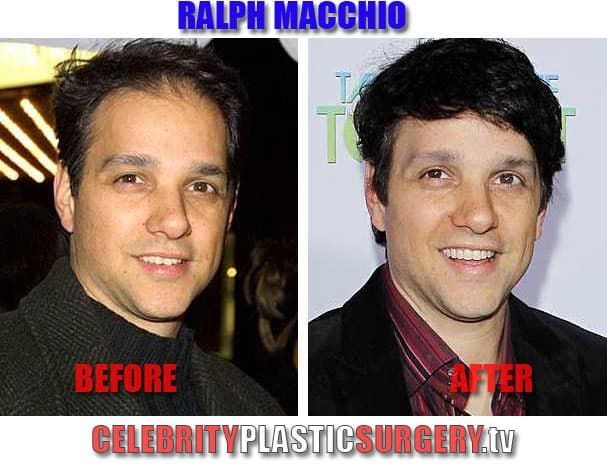 Ralph Macchio Before And After Plastic Surgery 1