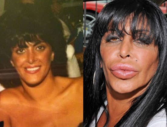 Renee Mob Wives Before She Had Plastic Surgery 1