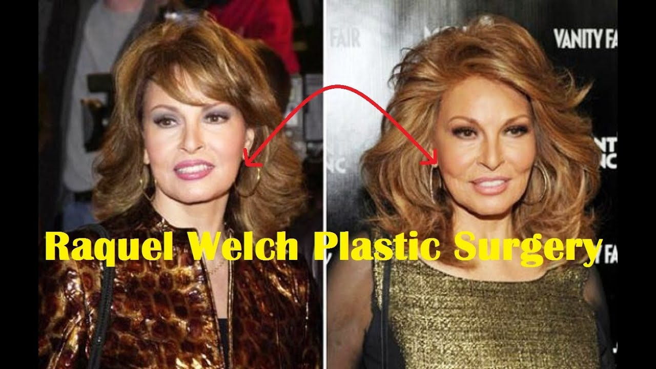 Sophia Loren Before And After Plastic Surgery 1