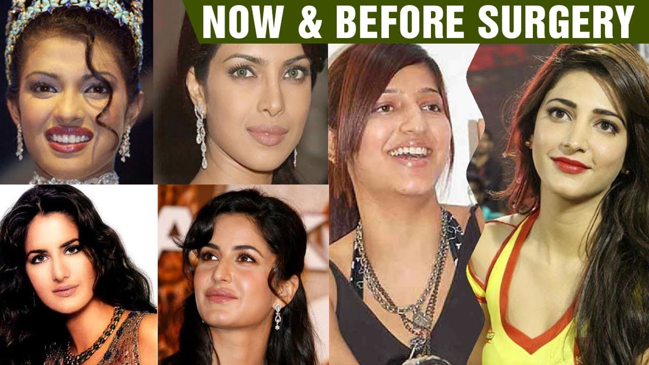 Women Before And After Plastic Surgery Indian 1