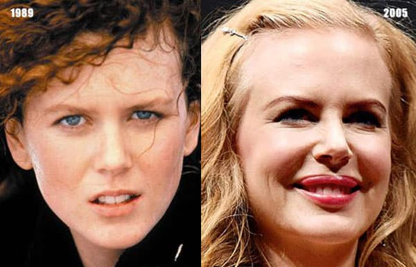 Nicole Kidman Plastic Surgery Before After Photos photo - 1