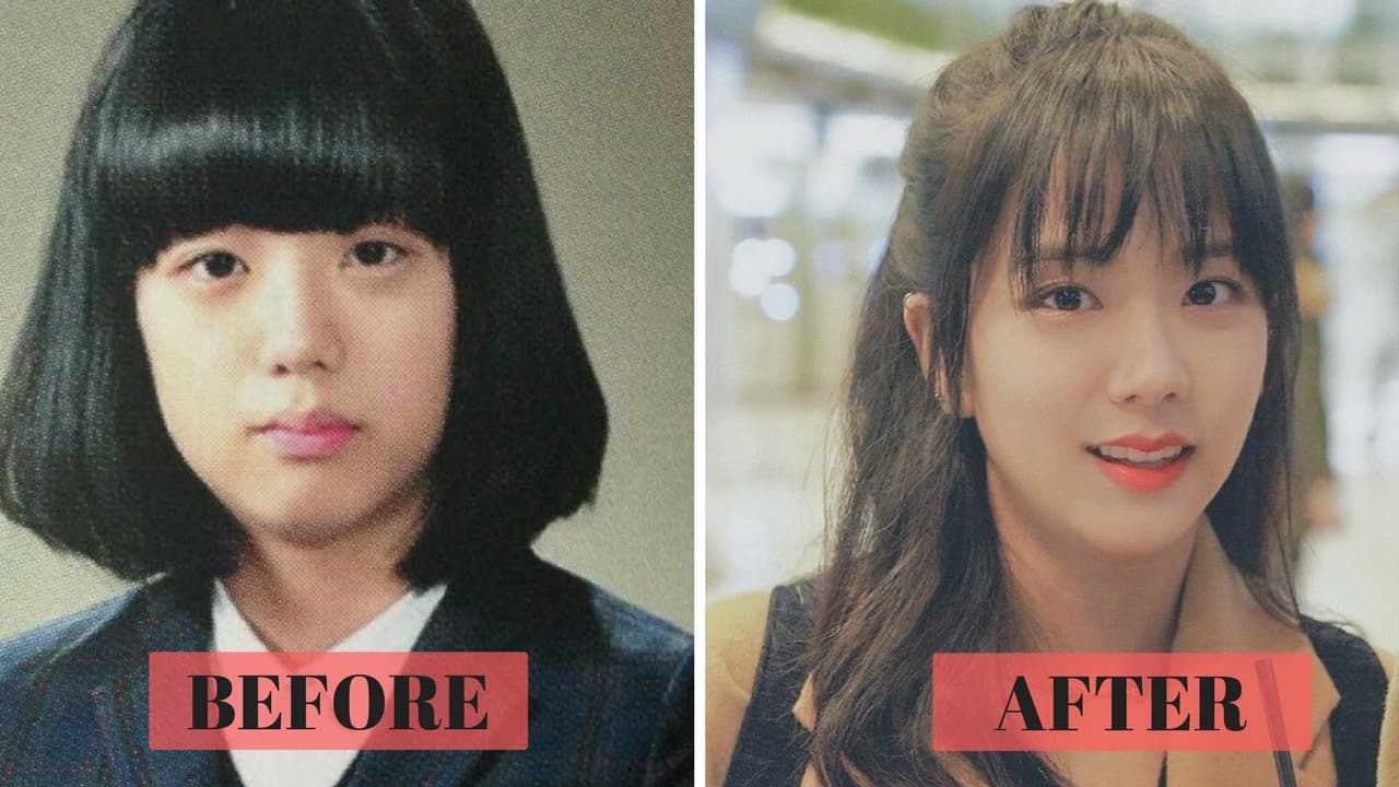 Blackpink Jennie Plastic Surgery Before And After photo - 1