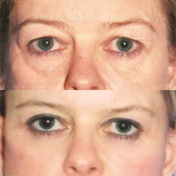 Cleveland Clinic Plastic Surgery Before And After photo - 1