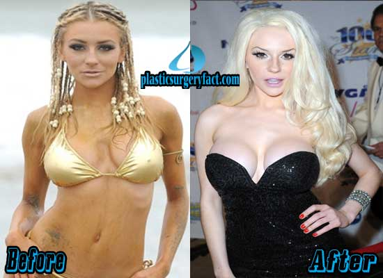 Courtney Stodden Plastic Surgery Before And After photo - 1
