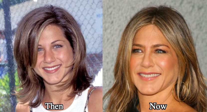Jennifer Aniston Before And After Plastic Surgery photo - 1