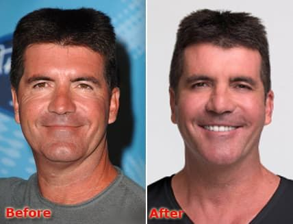 Simon Cowell Before And After Plastic Surgery 1