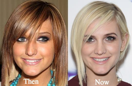 Ashlee Simpson Before And After Plastic Surgery 1