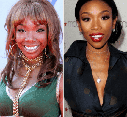 Brandy Norwood Plastic Surgery Before And After 1