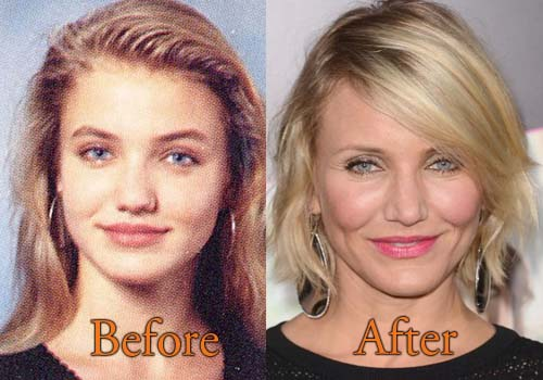 Drew Barrymore Before And After Plastic Surgery 1