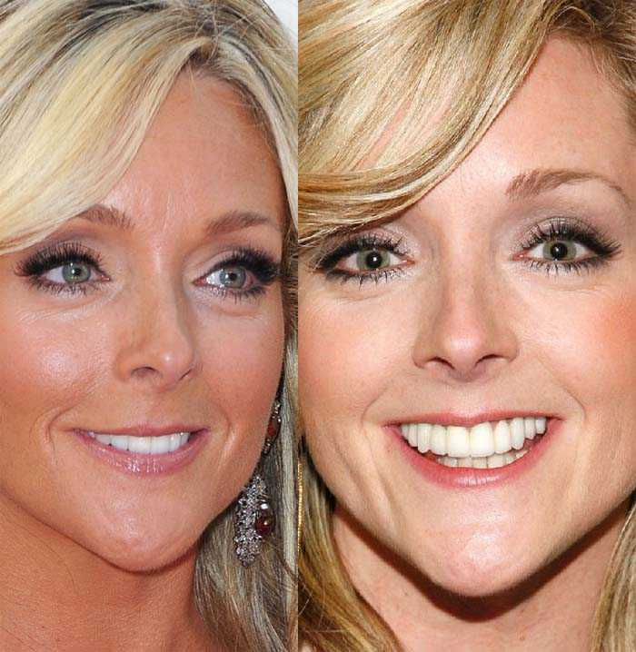 Jane Krakowski Plastic Surgery Before And After 1