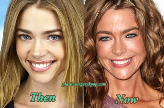 Stars Before And After Plastic Surgery Pictures 1