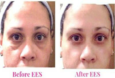 Under Eye Bags Plastic Surgery Before And After 1