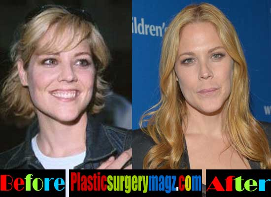 Mary Mccormack Plastic Surgery Before And After 1