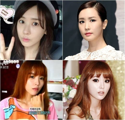 Hong Jin Young Before And After Plastic Surgery 1