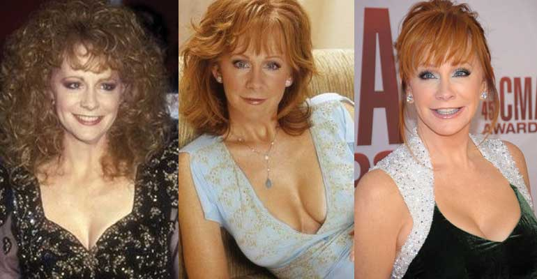 Linda Thompson Before And After Plastic Surgery 1