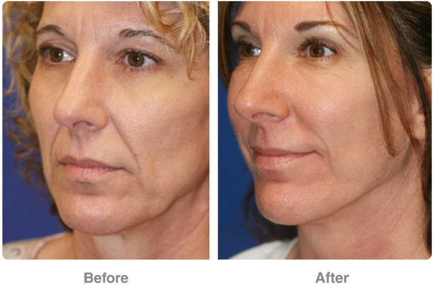 Plastic Surgery Face Lift Before And After Pics 1