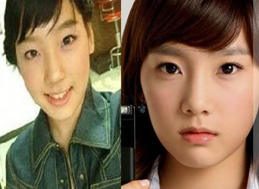 Taeyeon Singer Before And After Plastic Surgery 1