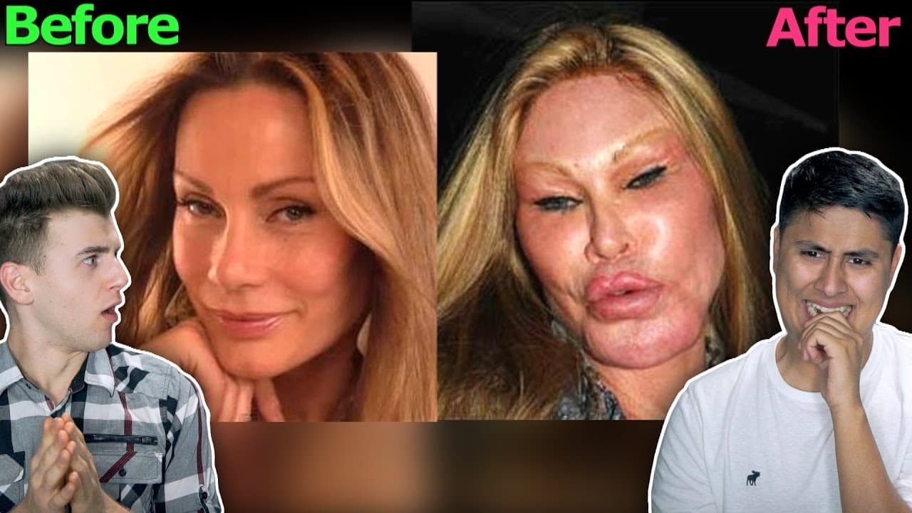 The Worst Plastic Surgery Ever Before And After 1