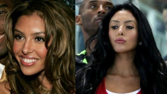Vanessa Bryant Plastic Surgery Before And After 1