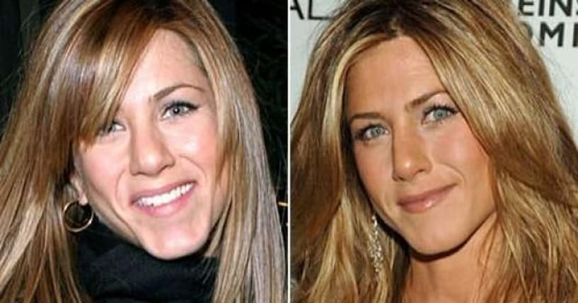 48 Celebrities Before And After Plastic Surgery 1