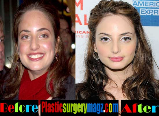 Alexa Ray Joel Before And After Plastic Surgery 1