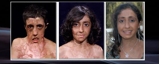 Before And After Plastic Surgery Downs Syndrome 1