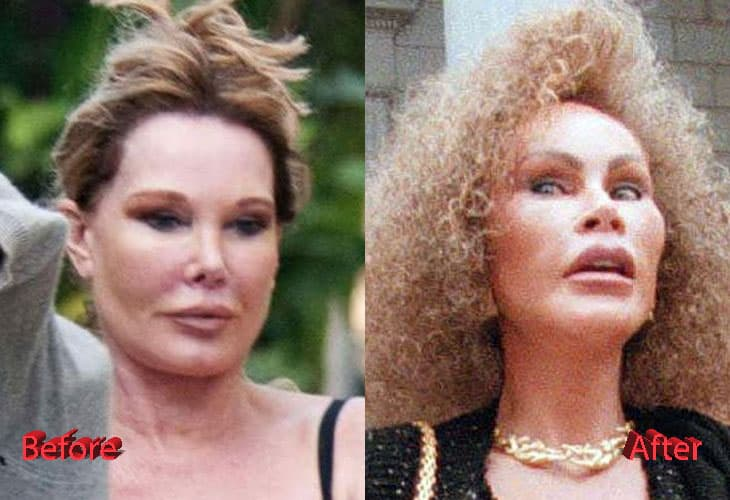 Cat Woman Face Before And After Plastic Surgery 1