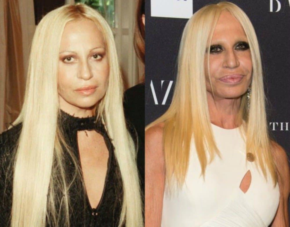 Celebrity Body Plastic Surgery Before And After 1
