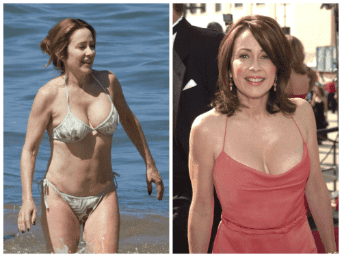 Patricia Heaton Before Pictures Plastic Surgery 1