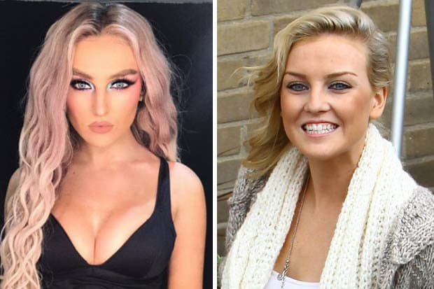 Perrie Edwards Before And After Plastic Surgery 1
