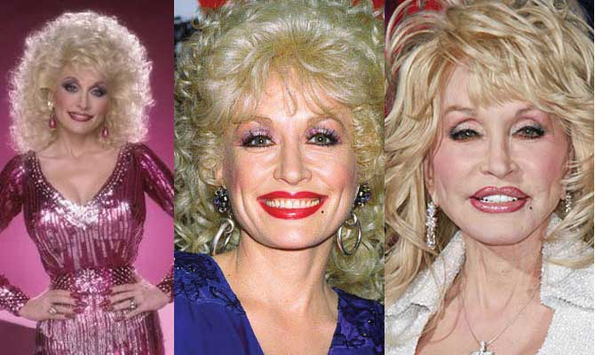 Pictures Of Dolly Parton Before Plastic Surgery 1