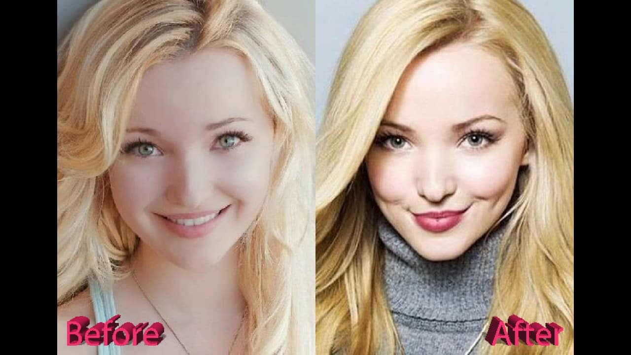 Pictures Of Dove Cameron Before Plastic Surgery 1
