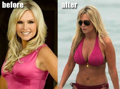 Tamra Before And After Plastic Surgery Facelift 1