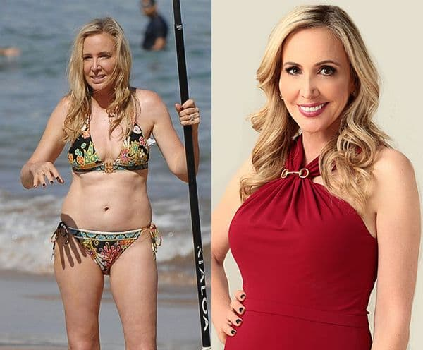 Vicki Gunalson Before And After Plastic Surgery 1