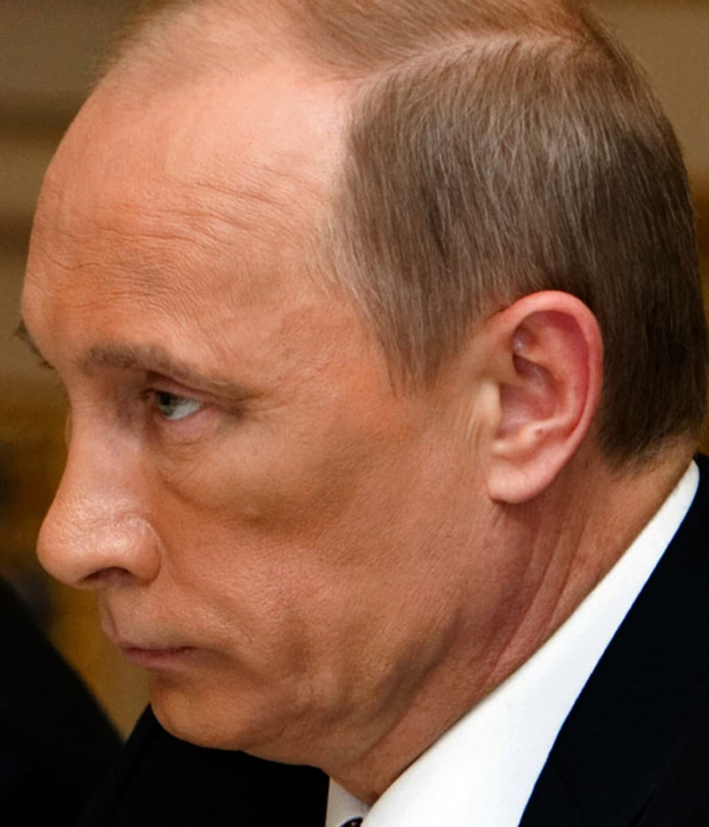 Vladimir Putin Before And After Plastic Surgery 1