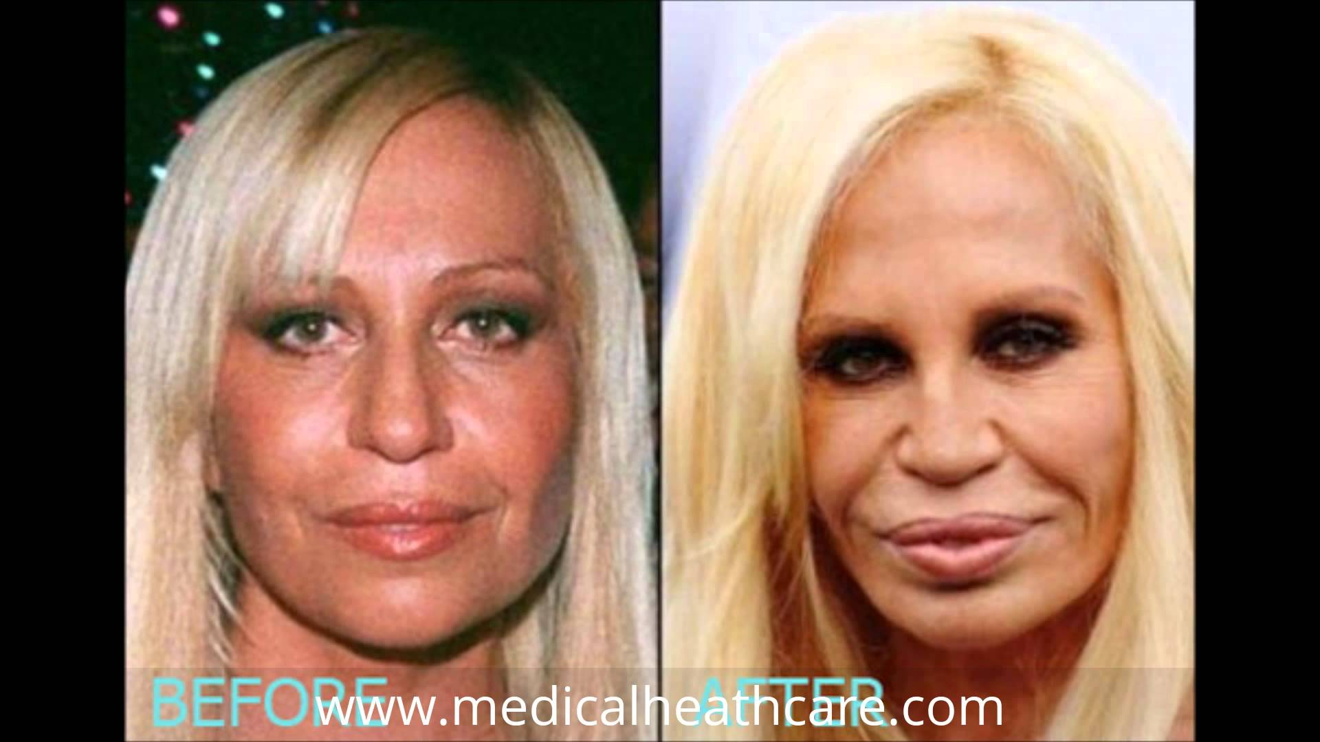 Young Donatella Versace Before Plastic Surgery 1