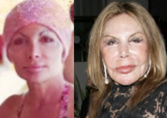 Alexis Bellino Before And After Plastic Surgery 1