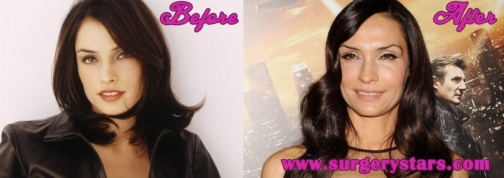Famke Janssen Before And After Plastic Surgery 1