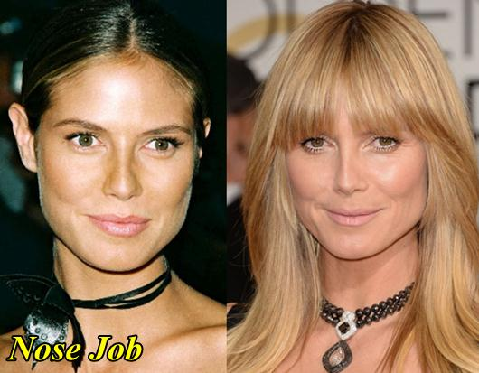 Plastic Surgery Before And After Camille D Cole 1