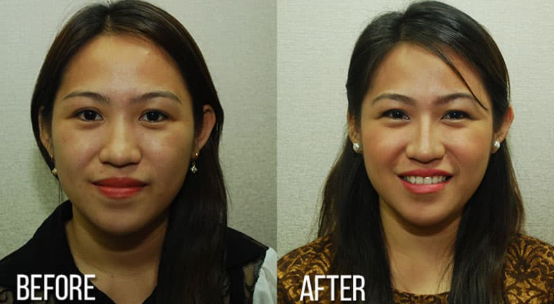 Plastic Surgery In Philippines Before And After 1