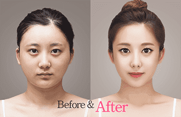 South Korea Plastic Surgery Before After Tumblr 1