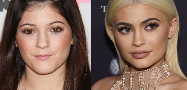 Kylie Jenner Before Plastic Surgery Interview 2017 photo - 1