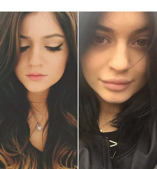 Kylie Jenner Plastic Surgery Before And After Pics photo - 1